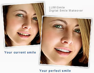 Girl before and after smile enhancement