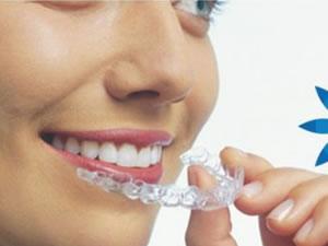 woman putting in invisalign by Niagara Falls Dentist