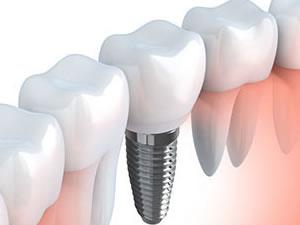 illustration of dental implant offered by Niagara Falls Dentist